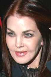 Prsicilla Presley After Plastic Surgery