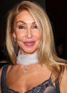 Linda Thompson After Facelift